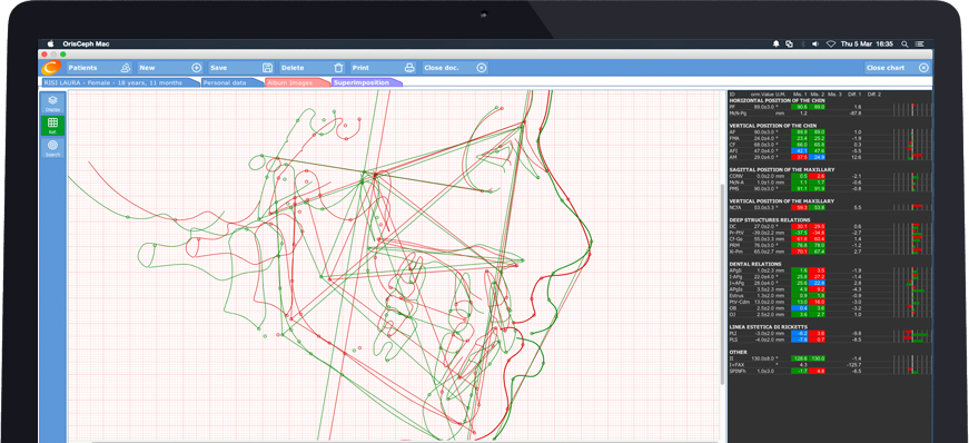 Software for cephalometric tracings