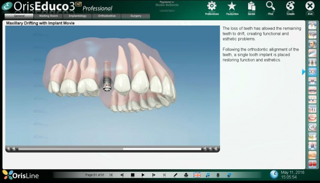 Implant videos OrisEduco